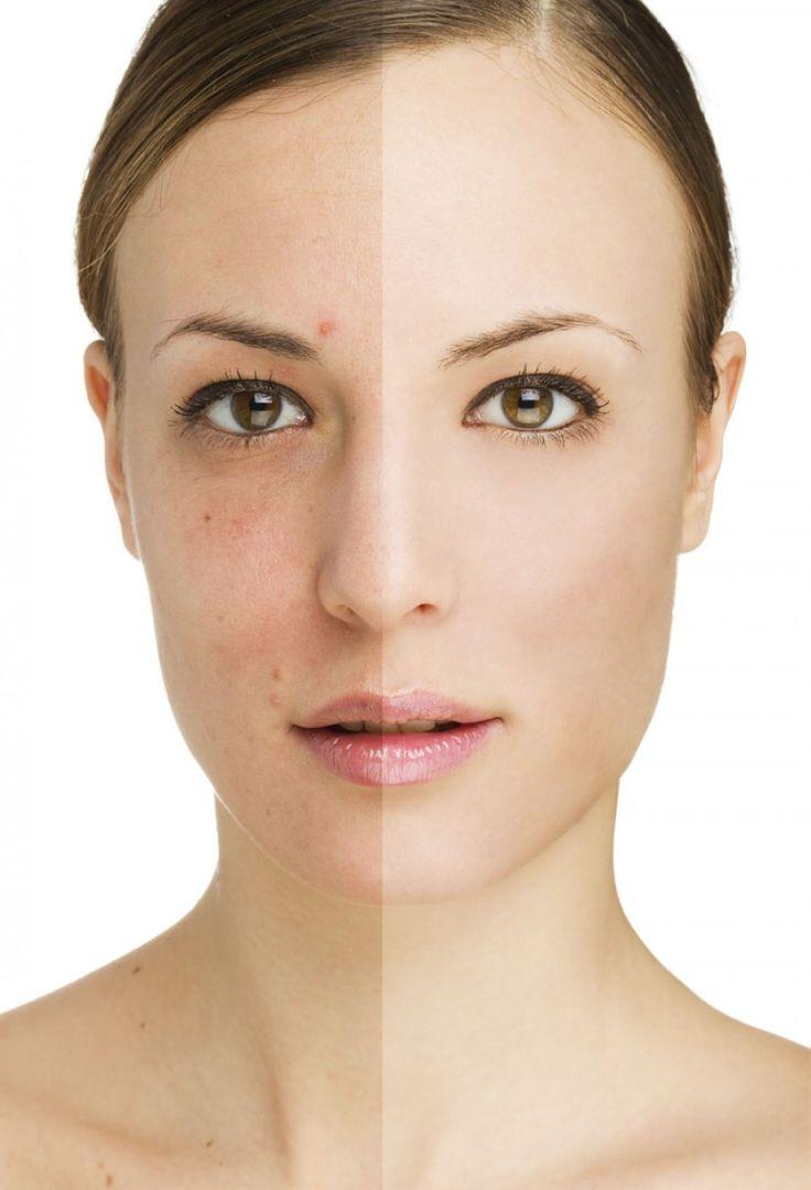 Aprende a como renovar tu piel ahora.. Te Encantará!