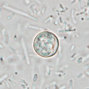 Cyclospora Oocyst In Unstained Wet Mount Human Parasites