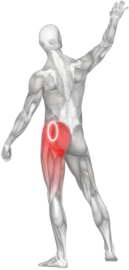 Terapia de Masaje para el dolor de espalda, dolor de cadera, y la ciática: Punto perfecto No. 6, una zona de los puntos gatillo comunes en los glúteos medio y menor músculos de la cadera.