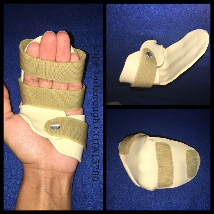 14 Best Orthotics Splints Images On Pinterest Hand