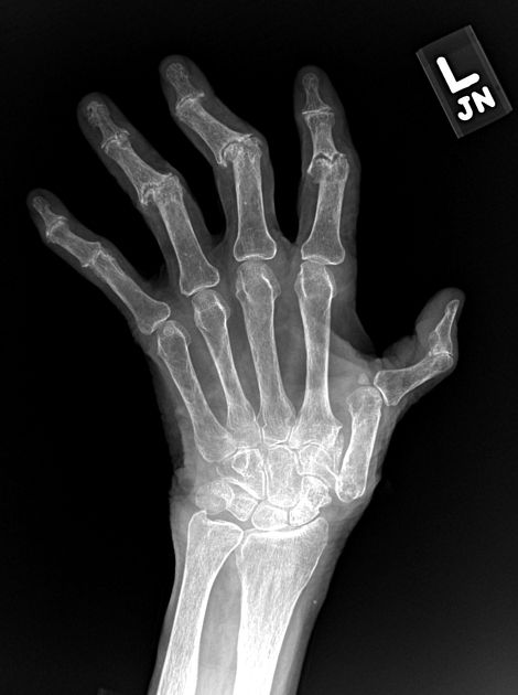 The Gull-wing appearance is seen in erosive osteoarthritis, typically on posteroanterior (PA) radiographs. The combination of cartilage space loss, central subchondral erosions, and marginal osteophyte proliferation results in a gull-wing appearance.  http://radiopaedia.org/articles/gull-wing-appearance