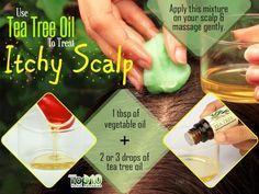 use tea tree oil to get relief from itchy scalp