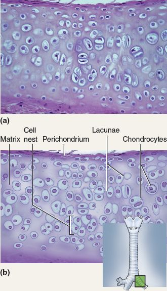 This tissue is hyaline cartilage. Hyaline cartilage is characterized by chondroblasts within a lacuna and a large amount of white space. is avascular, which makes it hard to repair. It is rubbery and rigid and can be found in the nose or trachea.