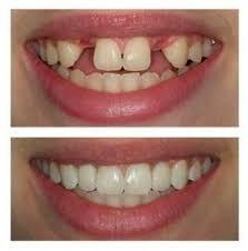 #dentaltourismnunavut #dentaltreatmentindia #dentistservicesjalandhar #dentalcareindia #teethwhiteningpunjab www.drguptasdentalcareindia.com Cont:91-9023444802