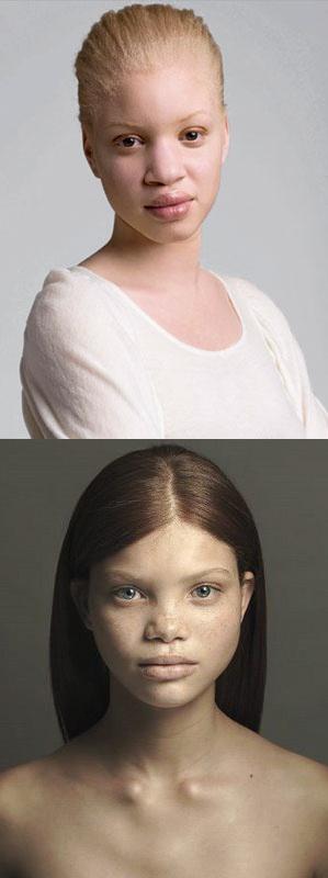 albino-woman-sex-pics