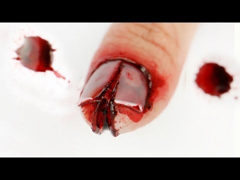 1000+ images about Wounds and deceptive situations viewers ...