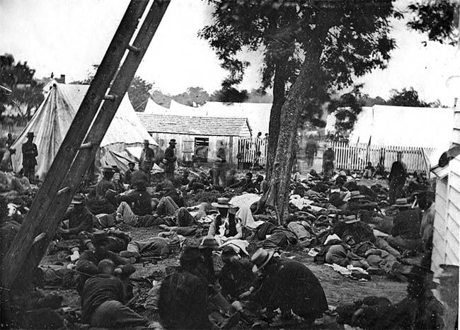 This photograph of the field hospital at the Battle of Savage Station gives the reader a better view of the conditions of Civil War medicine than can be described in words. Notice that the wounded do not have the benefit of shelter, and are left to suffer in the sun.  The number of wounded far exceeds the number available to help with treatment. The injured are doubtlessly suffering not only from their wounds and lack of care, but also from the elements.