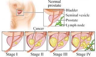 Stage of Prostate Cancer Prognosis