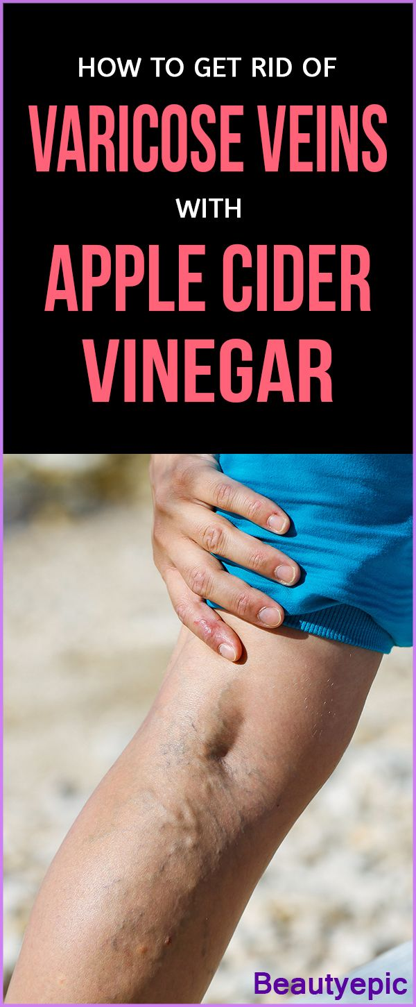 Apple Cider Vinegar for Varicose Veins
