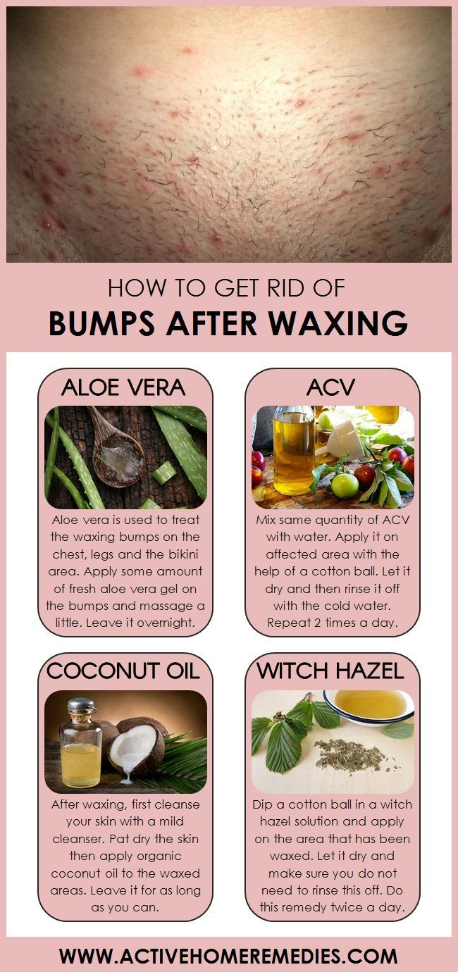 How To Get Rid Of Bumps After Waxing Perfect Skin Care Routine Beautiful Skin Care Clear Skin Tips