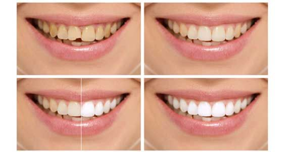 As the name suggests, a smile makeover is the art of improving the appearance of the smile through one or more cosmetic dentistry procedures, Tooth Color, Alignment and Spacing, Missing Teeth, Harmony and Balance, Fuller Lips, Smile and Cheeks, Esthetic Components of a Smile Makeover. These include such as teeth whitening (Bleaching), veneers, composite fillings & implants. Smile makeover cost in India. Smile makeover options, Smile makeover center, smile makeover with crowns.