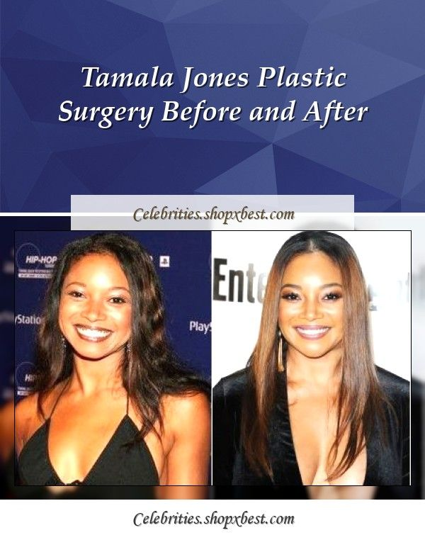 Tamala Jones Plastic Surgery Before And After Tamala Jones Plastic Surgery Celebrity Surgery