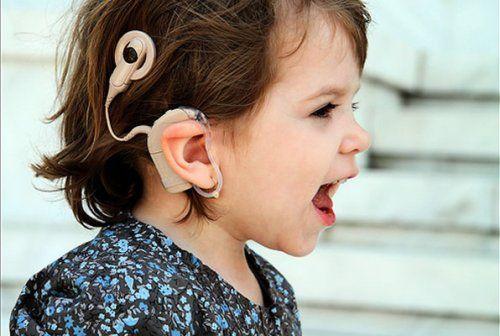 Sordera y más: Programa de Implementación de Implantes Cocleares ...