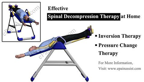 Spinal Decompression at Home: Therapies, Devices, Exercises to Decompress Spine at Home #SpinalDecompression #Spinal #Exercises #Therapies #Inversiontherapy #ToeTouchExercise #backpain #decompression #ePainAssist Read: http://www.epainassist.com/articles/spinal-decompression-at-home