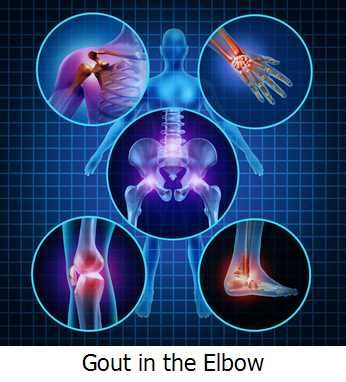 Gout in the Elbow -  You may be suffering from gout in the elbow if you're experiencing pain and if your elbow if swollen.