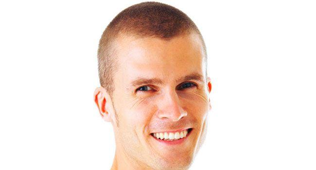 Preguntas suyas sobre la pérdida de cabello  #TrasplanteDeCabello #Calvicie #TrasplanteCapilar #TecnicaFUE #AlopeciaDeCejas #estética #cirugíaplástica #pérdidadelcabello #pérdidadecabello #trasplantedepelo