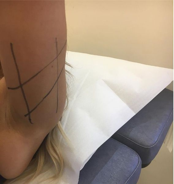 Bingo Wing Thread Lift  Lifting this lady's bingo wings to provide her a toned under arm. Immediate results, minimal downtime.   #threadlifts #bingowings #fatloss #fitness #bodylift #cosmetics #aesthetics #womenshealth #toned #tonedarms #skin #lookgood #feelgood