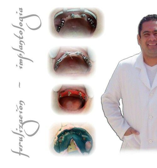 Toma de impresión sobre implantologia
