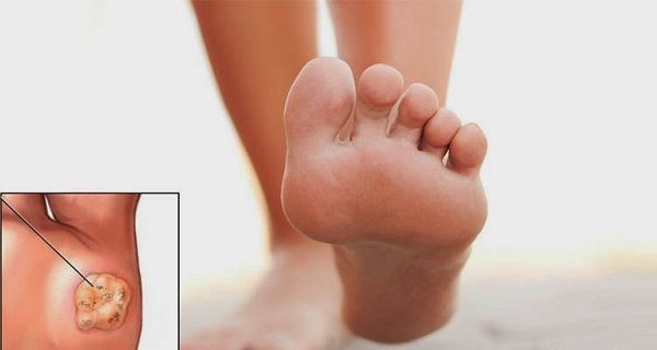 What is a Plantar Wart? A plantar wartis a small growth on the foot that develops when the skin is infected by the human papillomavirus (HPV). Medically