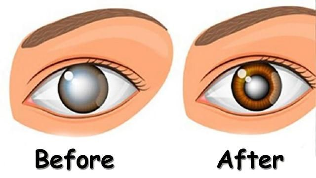 A Natural Remedy That Will Clean The Eyes Treat Cataracts And