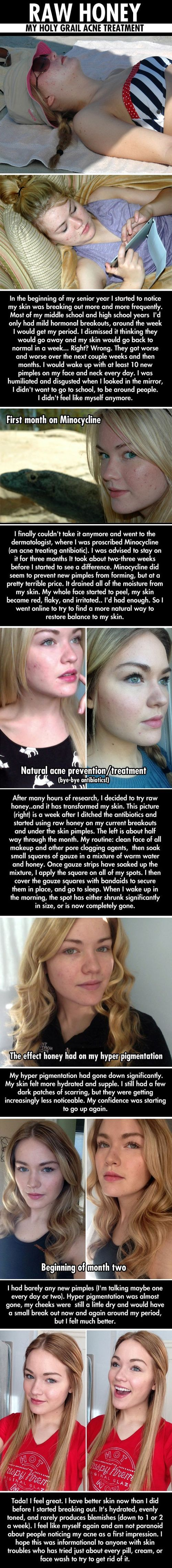 Interesting method for using honey warm water to lessen acne and hyper pigmentation. (GOOD TO KNOW!!!)