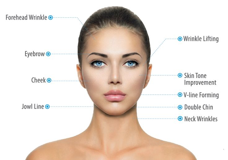 Ultraformer Tx Areas Ultraformer works for face and neck lifting, skin tightening, wrinkles and pores reduction, V-line forming, jowl line lifting, submenturm fat reduction, cheeks, skin tone improvement, choller, and laxity improvement.Laser,IPL, Botox and filer treatment can be combined after Ultraformer treatment.