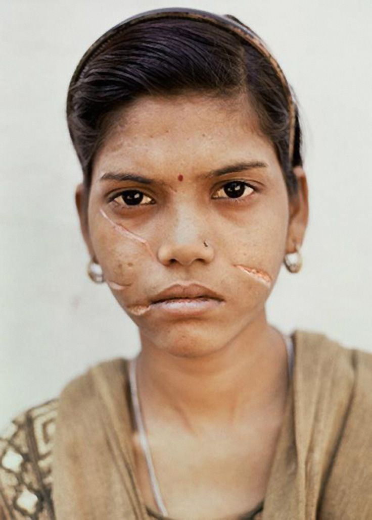 Still beautiful. Her husband brutally cut her face because he felt her dowry was insufficient. Image by Adrian Fisk.