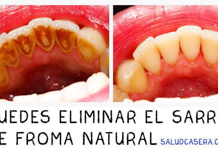 La Manera Más Fácil de Eliminar el Sarro y Placa Dental - Taringa!