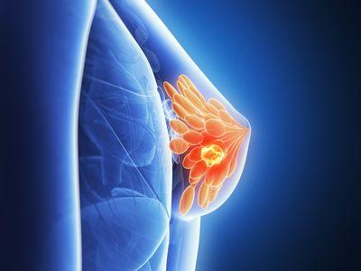Лечение в Германии рака молочной железы