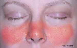 Lupus Butterfly Rash or Acute Cutaneous Lupus