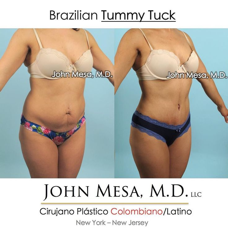 Brazilian Tummy Tuck: a type of tummy tuck that combines traditional tummy tuck …