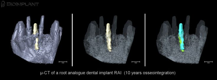 ***µ-CT OF ROOT ANALOGUE DENTAL IMPLANT AFTER 10 YEARS OSSEOINTEGRATION TIME.***   This picture is dedicated to all our 4.410 Facebook friends supporting our aim to make immediate dental implantology more intelligent, less invasive, less risky, time and cost saving and applicable to all family dentist and their patients in need of an immediate tooth replacement solution by using state-of-the-art CAD/CAM technology.