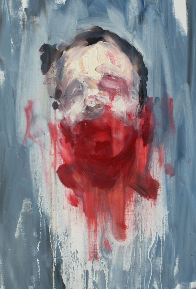 Head with Bruises, Antony Micallef