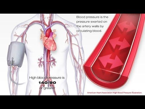 No 1 FOOD for Hypertension HEART Attack, & Cholesterol. HOW To Low High BLOOD Pressure, Cholesterol? - YouTube