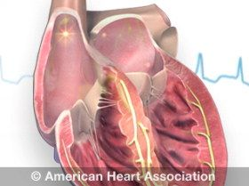 Atrial Fibrillation (one cause of Ischemic Strokes)