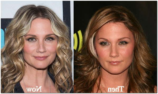 Jennifer Nettles Plastic Surgery Before & After