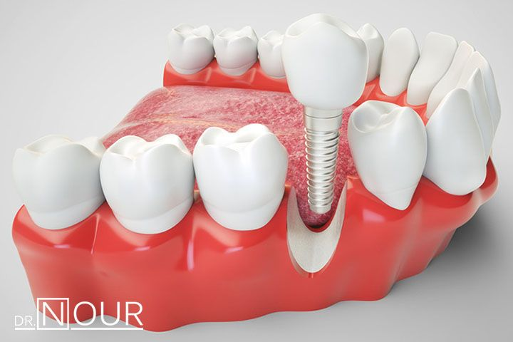 زراعة الاسنان من العمليات التي تساعد المريض على استعادة طريقة مضغ الطعام بشكل طبيعي ومظهر الابتسامة الجميلة الطبيعية Implant Dentistry Bone Grafting Dentistry