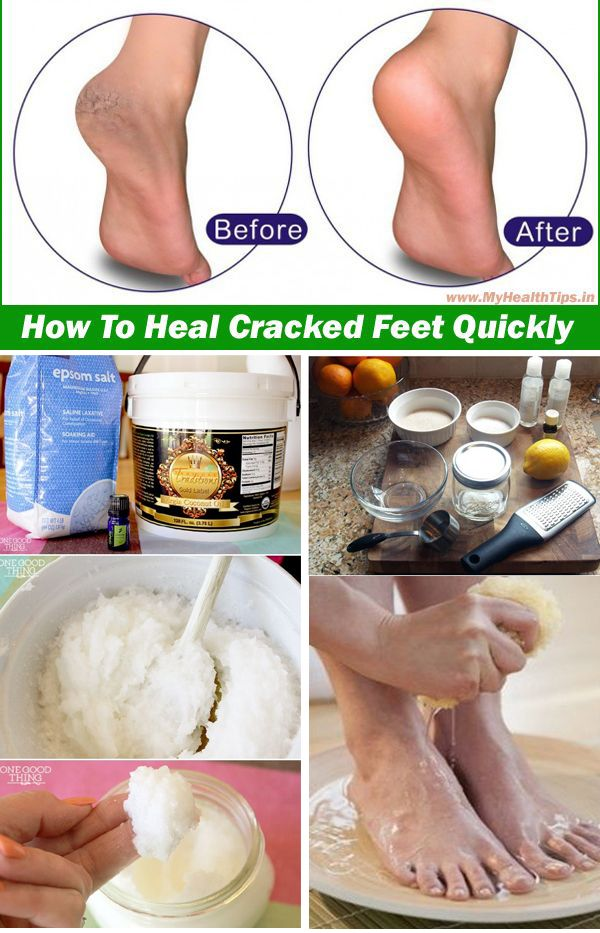 UNBELIEVABLE RESULTS!!! It really works!!! Cracked Heel Home Remedy