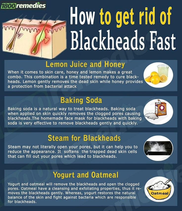 How To Remove Blackheads From Face Naturally Fast At Home