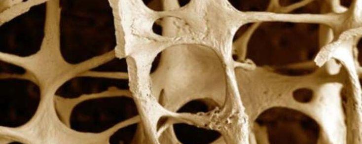 Osteoporosi: oltre al movimento, utile una dieta adeguata!