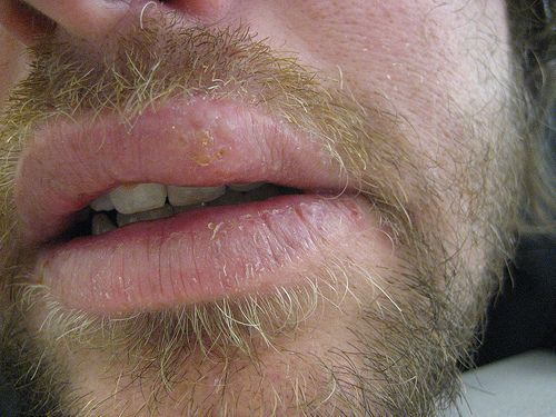 Home Remedies For Cold Sores On Your Lip