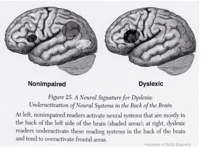 153 best Dyslexia / Dysgraphia images on Pinterest