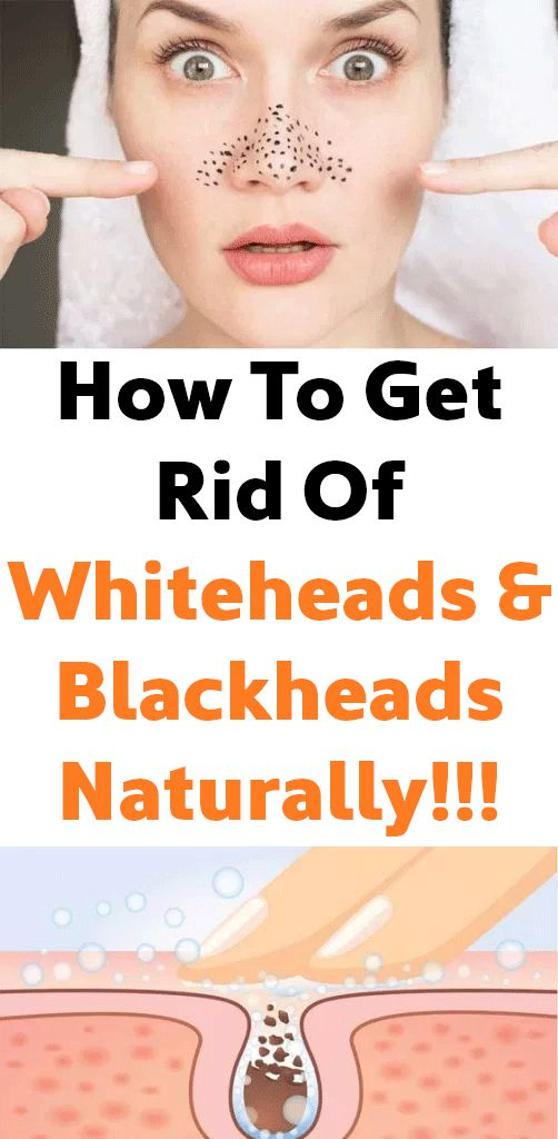 How To Get Rid Of Whiteheads & Blackheads Naturally!!!