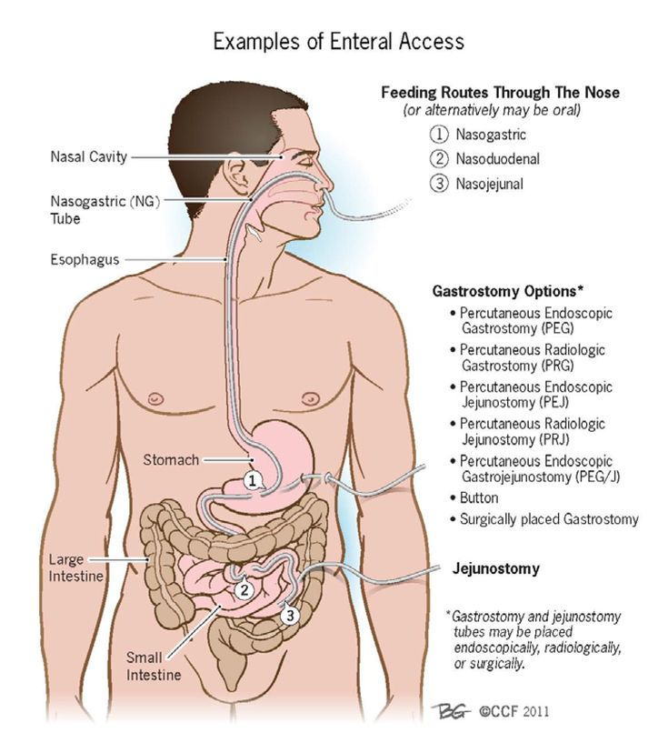 Examples of Enteral Access http://s3-patients.gi.org/files/2011/11/enteral_parenteral_fig1.jpg