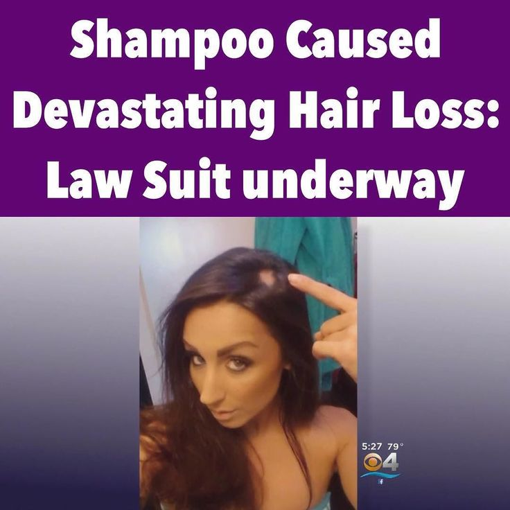 Read The Full Story  http://ift.tt/1LNPpOe  Hundreds Of Victims File Lawsuit Claim Famous Shampoo Caused Devastating Hair Loss (Video)  (N.Morgan) A number of lawsuits have been filed against the Wen Group the manufacturer of the well-known Wen hair care products. In fact hundreds of victims have come forward claiming they have suffered hair and scalp damage after using the Wen cleansing shampoo and conditioner.  This shampoo has ruined my life. I wish there was a way to make them pay for…