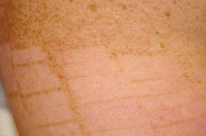Freckle Removal: Top 10 FAQs
