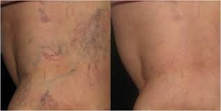 laser varicose vein removal cost