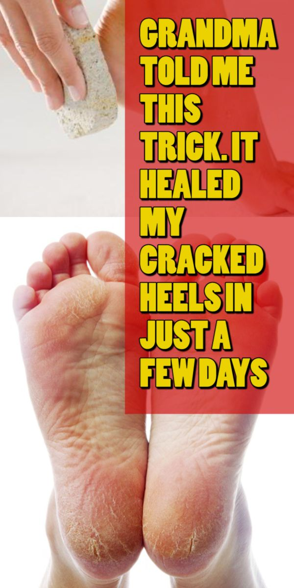 GRANDMA TOLD ME THIS TRICK. IT HEALED MY CRACKED HEELS IN JUST A FEW DAYS
