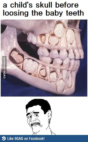 A child's skull before losing baby teeth.  Cool and creepy...  You know what?  More creepy than cool.  Eeeeeeeeee!