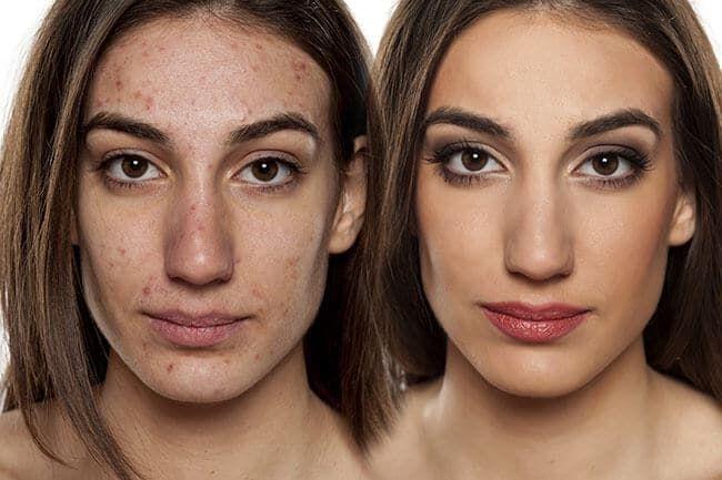 ketogenic diet for acne